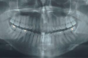 Dental x-ray and exam