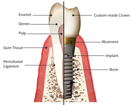 Boise dental implants