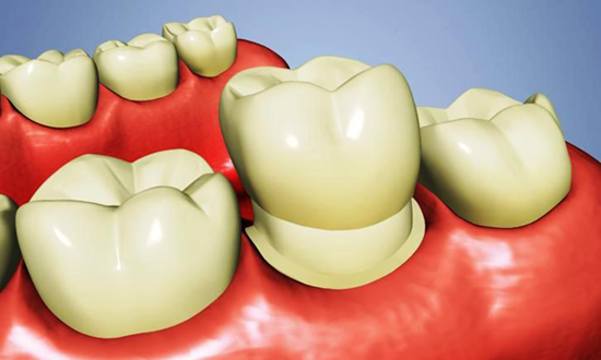 Boise dental implants