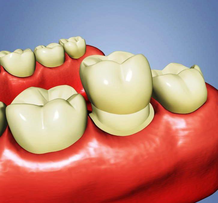 Boise dental crowns