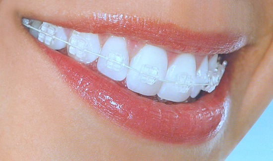 Clear braces in Boise, Idaho