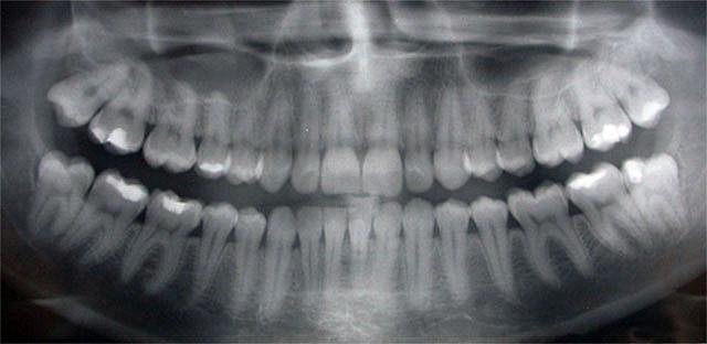 X-ray of dental filling