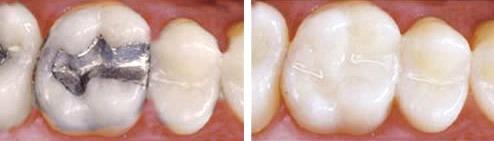 Composite dental fillings in Boise, Idaho